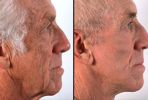 Photos of before and after a facelift.
