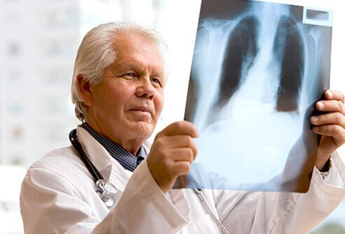 The diagnosis of costochondritis is based upon the patient's history and physical exam.