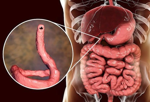 You can pick up hookworm by walking barefoot on soil that has the organism.