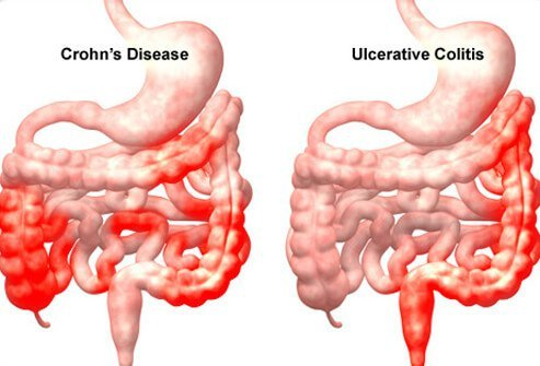 Both Crohn's disease and ulcerative colitis are chronic diseases of intestinal inflammation.