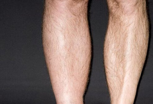 A common symptom of DVT is a leg swollen below the knee.