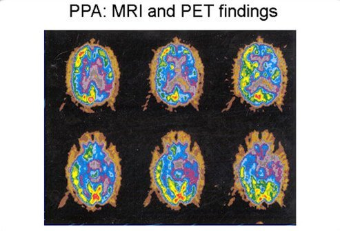 Patient with progressive frontotemporal dementia shows positron emission tomography (PET) scan indicating hypometabolism of glucose in the left hemisphere.