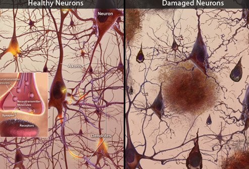 This illustration shows healthy brain neurons (left) and damaged brain neurons (right) caused by AD: plaques, tangles, and the loss of connection between neurons.