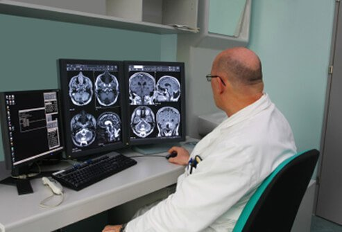 A doctor studies MRI scans of a dementia patient.