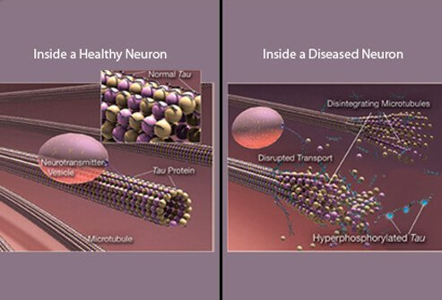 These illustrations compare healthy (left) and diseased neurons (right).