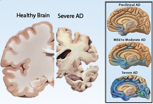 Illustrations showing a healthy brain vs. a brain with severe Alzheimer's disease (left) and the progression of AD from preclinical to moderate to severe (right).