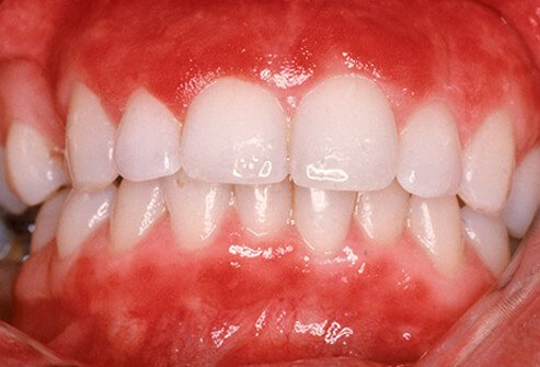 Gingivitis in a patient showing inflammation of gums.