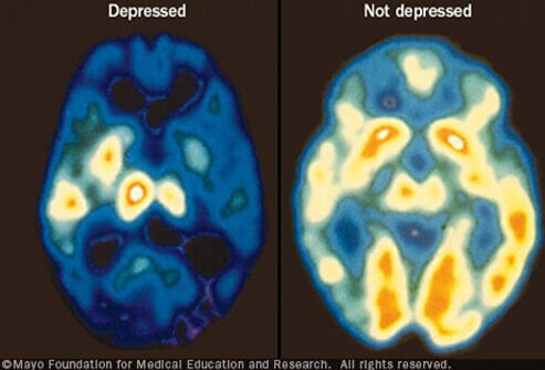 A PET scan compares brain activity during periods of depression (left) with normal brain activity (right).