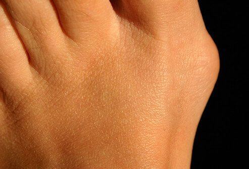 Bunions form when the big toe angles toward the second toe and becomes red and callused (where the big toe joins the rest of the foot), usually due to wearing shoes with narrow toes.