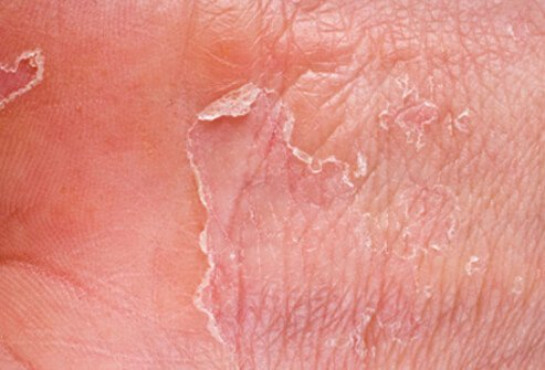 Dry, cracked skin allows bacteria and other germs to enter your body, potentially causing an infection.