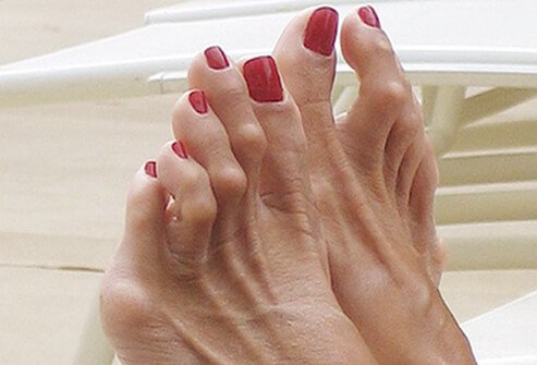 A hammertoe is a toe that is bent because of a weakened muscle that makes the tendons shorter, causing the toes to curl under the feet.