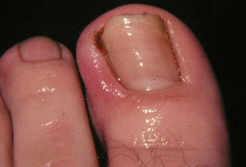 Ingrown toenails occur when the edges of the nail grow into the skin causing redness, swelling, pain, drainage, and infection.