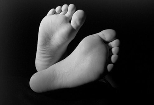 Elevated blood glucose levels can cause foot problems.