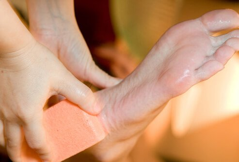 After bathing, use a pumice stone or emery board to smooth hardened areas of the feet that contain corns and calluses.