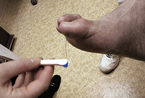 A doctor tests for feeling on a patient's foot.