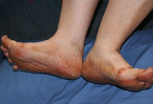 Diabetes is associated with poor circulation (blood flow).