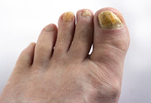 Nails infected with a fungus may become discolored, thick and brittle, and may separate from the rest of the nail.