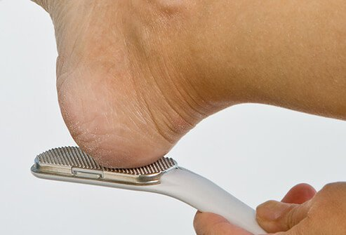 Calluses are hard areas of thickened skin that build up on the bottom of the feet.