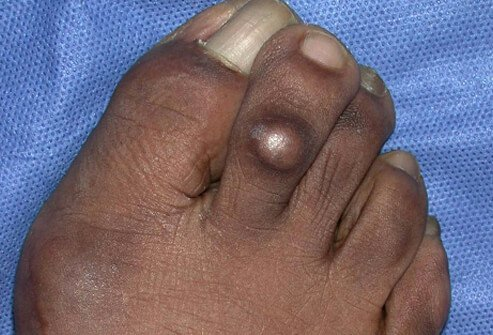 A corn is a thickened, button-like area of skin that builds up between the toes or near a bony area of a toe.