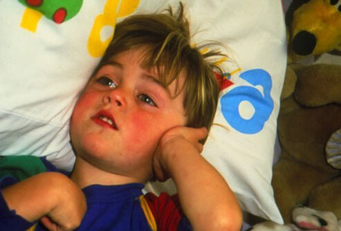 Child holding ear in pain from an ear infection.