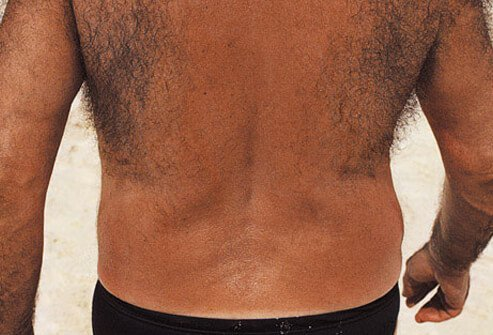 Most men have hair on their backs.