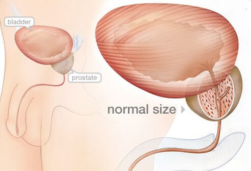 The prostate gland is located below the bladder in men and produces fluid components of semen.