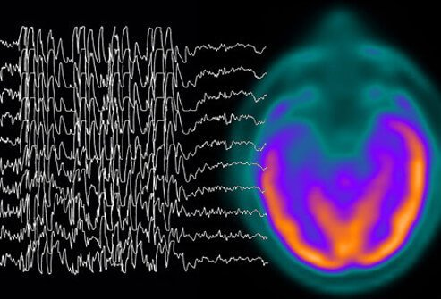 A graph showing brain waves.