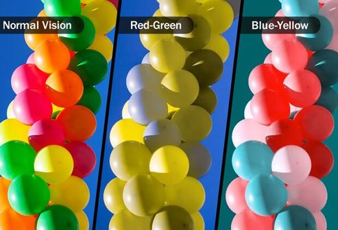 Colorblindness causes an inability to distinguish red and green or blue and yellow.