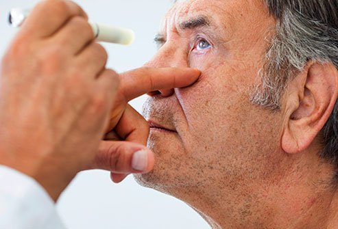 Red, watery eyes that itch or burn can be a telltale sign of allergies.