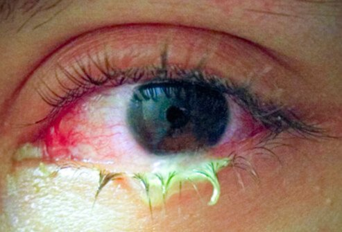Conjunctivitis, or pinkeye, is an eye diseases that causes redness and inflammation of the clear tissue covering the eye and the inside of the eyelids (conjunctiva).
