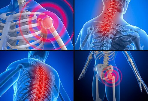 Chronic pain in the body caused by fibromyalgia.