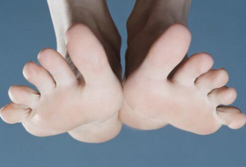 A close-up of foot spasms.