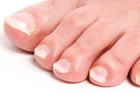 Toes with white nails.