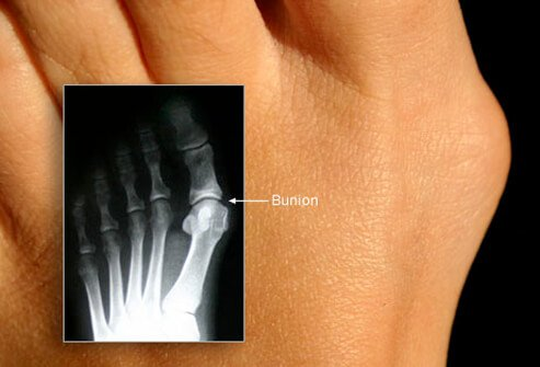 A bunion is a bony bump at the base of the big toe.