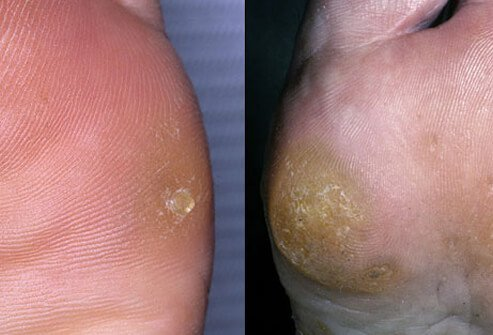 Picture of Corns and Calluses