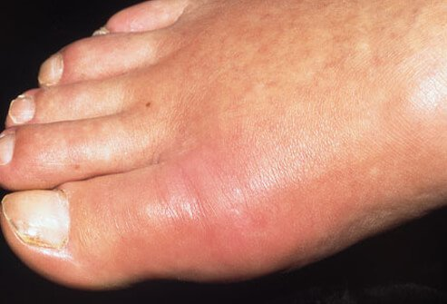 haracteristics of gout include redness, swelling, sudden pain, and stiffness, most commonly in the large joint of the big toe.