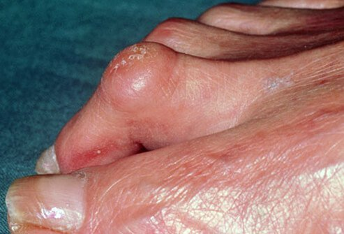 When muscles controlling the toes get out of balance, they can cause painful toe contractures.