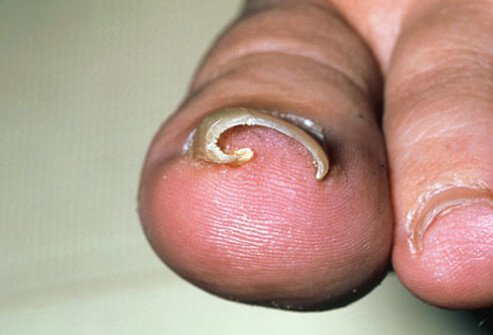 A toenail that has grown into the skin, an ingrown toenail can result in pain, redness, swelling, and even infection.