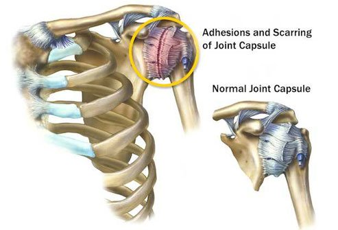 Strong connective tissue called the shoulder capsule surrounds the ball end of your upper arm bone and holds it to the socket.