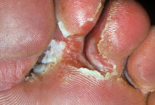 Athlete's foot is a toe fungal infection that causes cracking, burning, itching, and peeling.