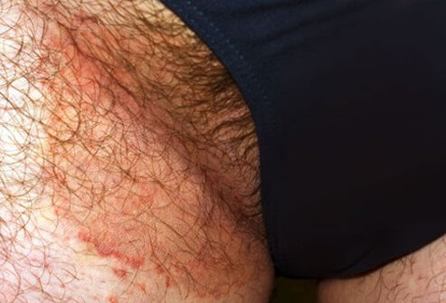 Jock itch is a fungal infection on the groin.