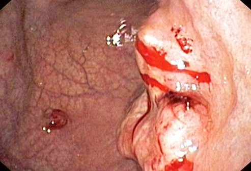 Most stomach cancers are gastric adenocarcinomas.