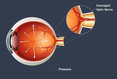 Glaucoma refers to several diseases that damage the optic nerve.