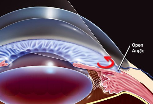 The most common form of this condition is open-angle glaucoma.