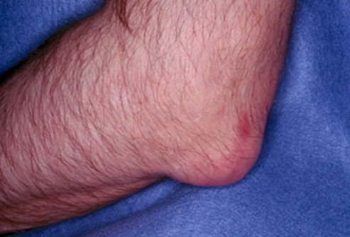 Here is an example of gout affecting the elbow.
