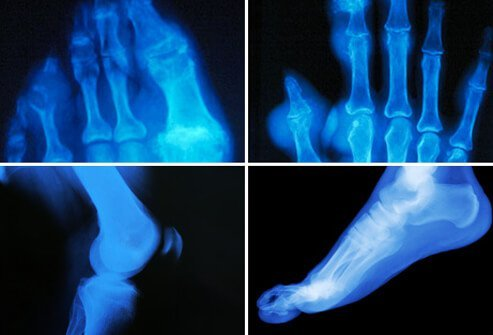 Gouty arthritis is characterized by a rapid onset of pain in the affected joint followed by warmth, swelling, reddish discoloration, and marked tenderness.