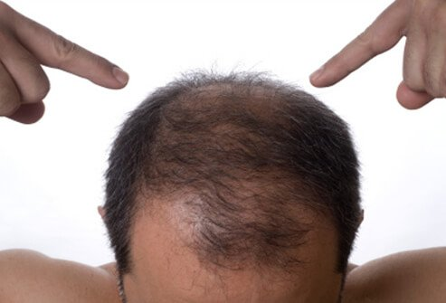 A man points to his thinning hair.