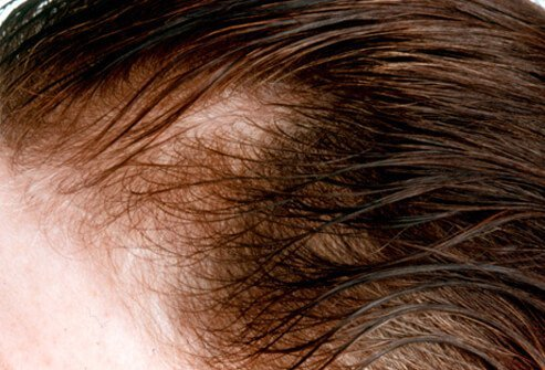 A woman shows signs of female-pattern baldness.