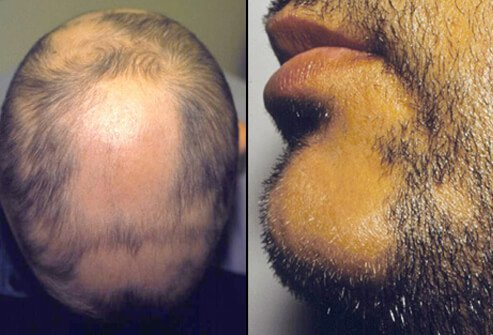 The man on the left has patchy alopecia areata. The man on the right has alopecia areata that's affecting his beard.