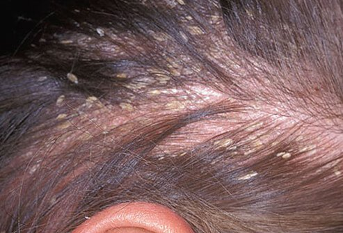 Probably the most common rash present in adults is seborrheic dermatitis.